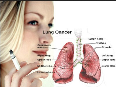Lung Cancer: Treatment choices